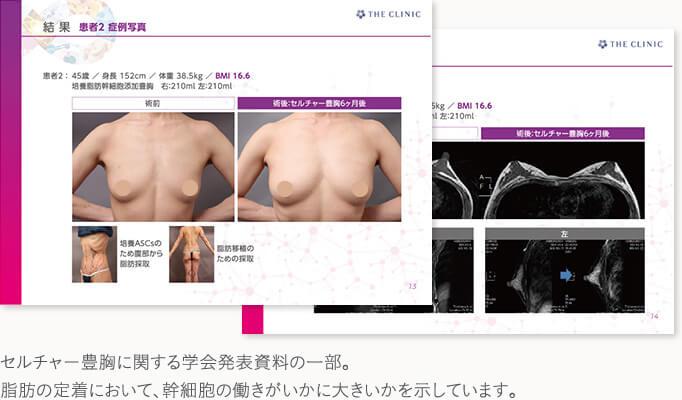 最新の脂肪注入豊胸「セルチャー豊胸」の症例
