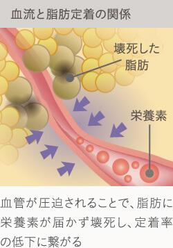 脂肪注入豊胸後、定着を悪くするのが血管の圧迫